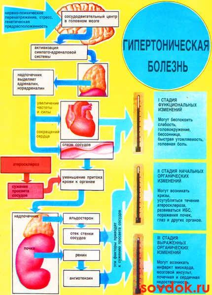 схема проявлений артериальной гипертензии