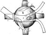 Схема склеропластики по Беляеву
