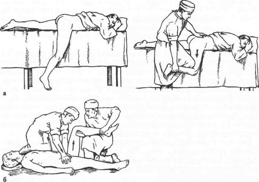 Схему вправления вывиха тазобедренного сустава что такое артралгия тазобедренного сустава