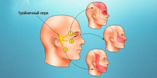 Схематичное изображение лица и тройничного нерва с ветвями и узлом