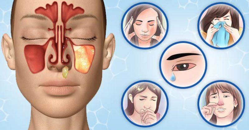 Чем лечить хронический синусит у взрослых в домашних условиях 91