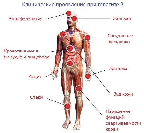 Симптомы хронического гепатита В