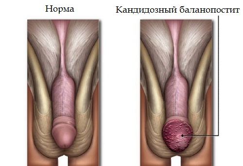 Симптомы кандидозного баланопостита