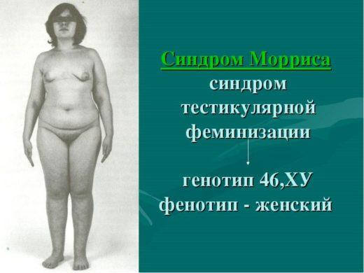 Синдром Морриса — генотип
