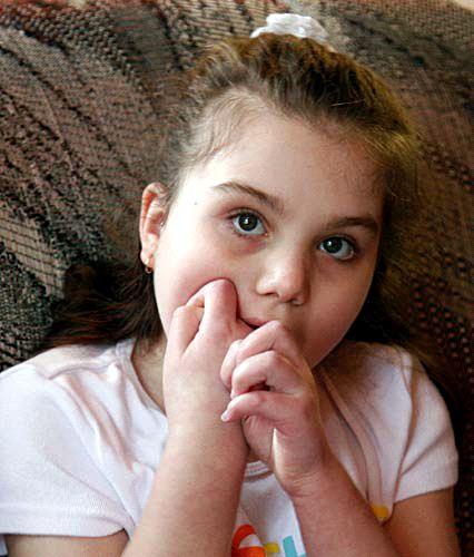 Ребёнок с синдромом Ретта