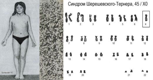 Синдром Тёрнера-Шерешевского: внешний вид больной и её хромосомный набор