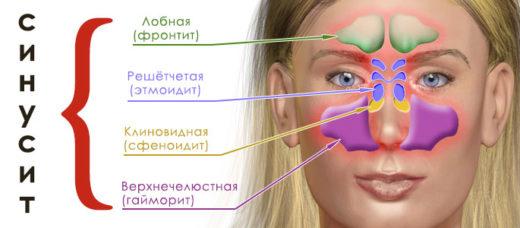 Схема расположения пазух