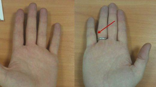 Размеры ладони в норме и при травме мизинца