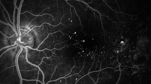 Снимок глазного дна при флуоресцентной ангиографии