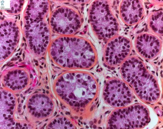 Сперматогенная ткань яичка под микроскопом