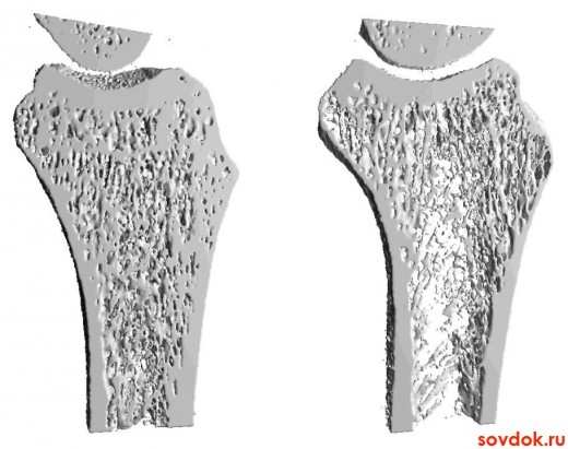 справа изменённая кость