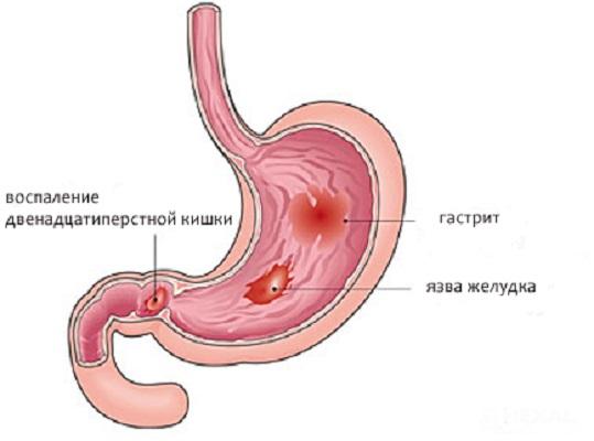 Воспаление двенадцатиперстной кишки симптомы и лечение