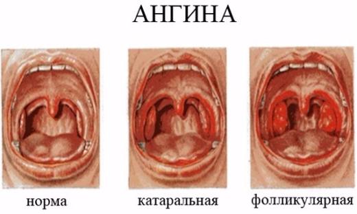 сравнение фолликулярной и катаральной форм ангины
