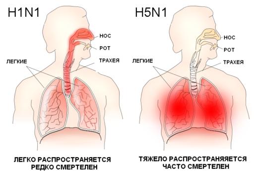Сравнение клинической картины обычного гриппа и птичьего