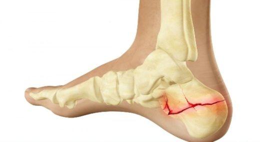 Стабильный перелом пяточной кости