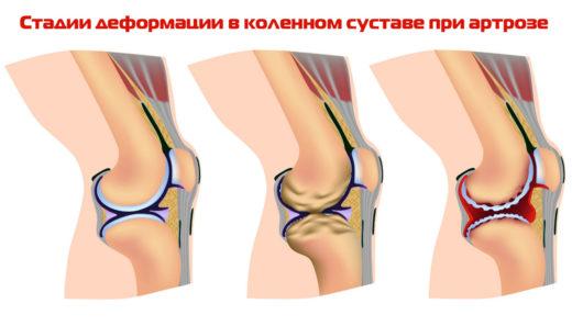 Стадии дегенерации хряща коленного сустава