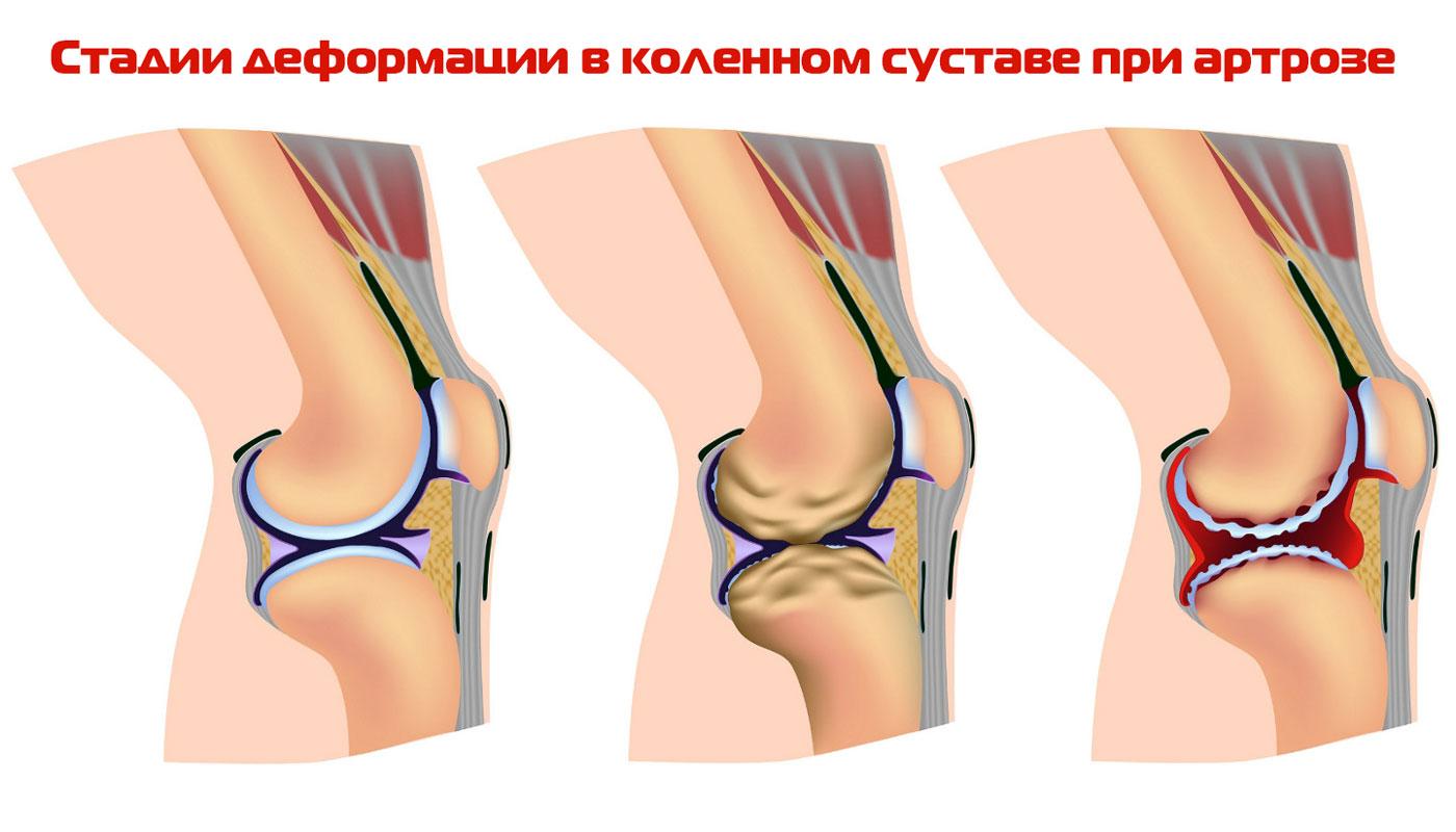 расшифровка узи тазобедренных суставов у грудничков