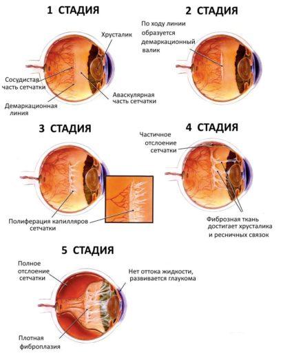 Стадии ретинопатии недоношенных