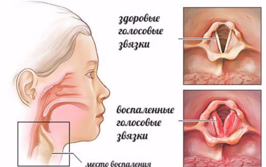 Отличия здоровых голосовых связок от воспалённых
