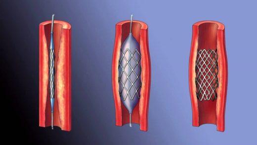 Этапы постановки стента в просвет артерии