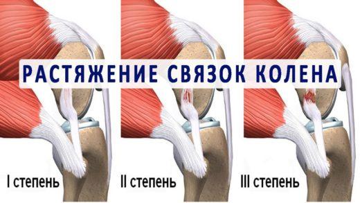 Степени растяжения коленных связок