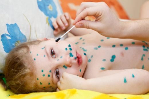 Стрептококковое импетиго у ребёнка