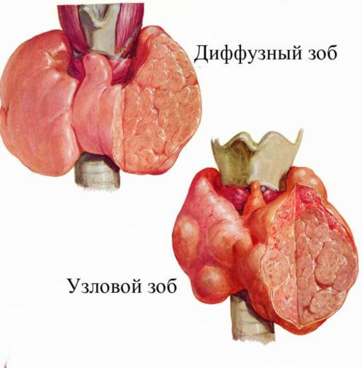 Строение зоба щитовидной железы