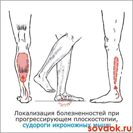 Судороги икроножных мышц у беременных 27