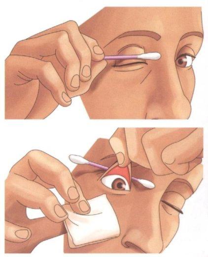 Техника промывания глаза