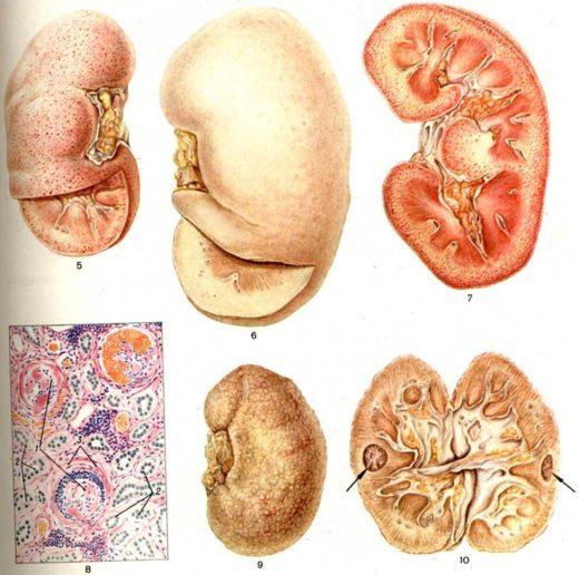 Терминальная стадия амилоидоза почек