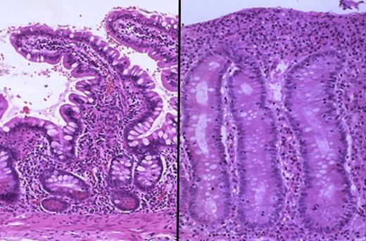 Ткань кишки под микроскопом