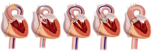 Транскатетеральная имплантация аортального клапана