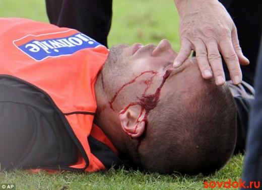 травма головы у футболиста