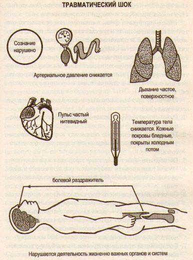 Травматический шок (схема)
