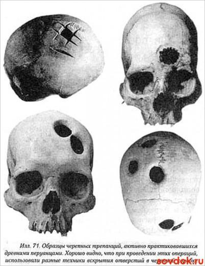трепанация черепа в древности