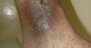 трофические изменения кожи на голени и язва