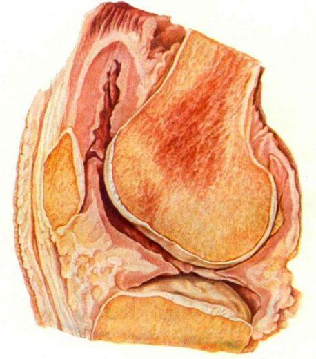 Туберкулёз коленного сустава (гонит)