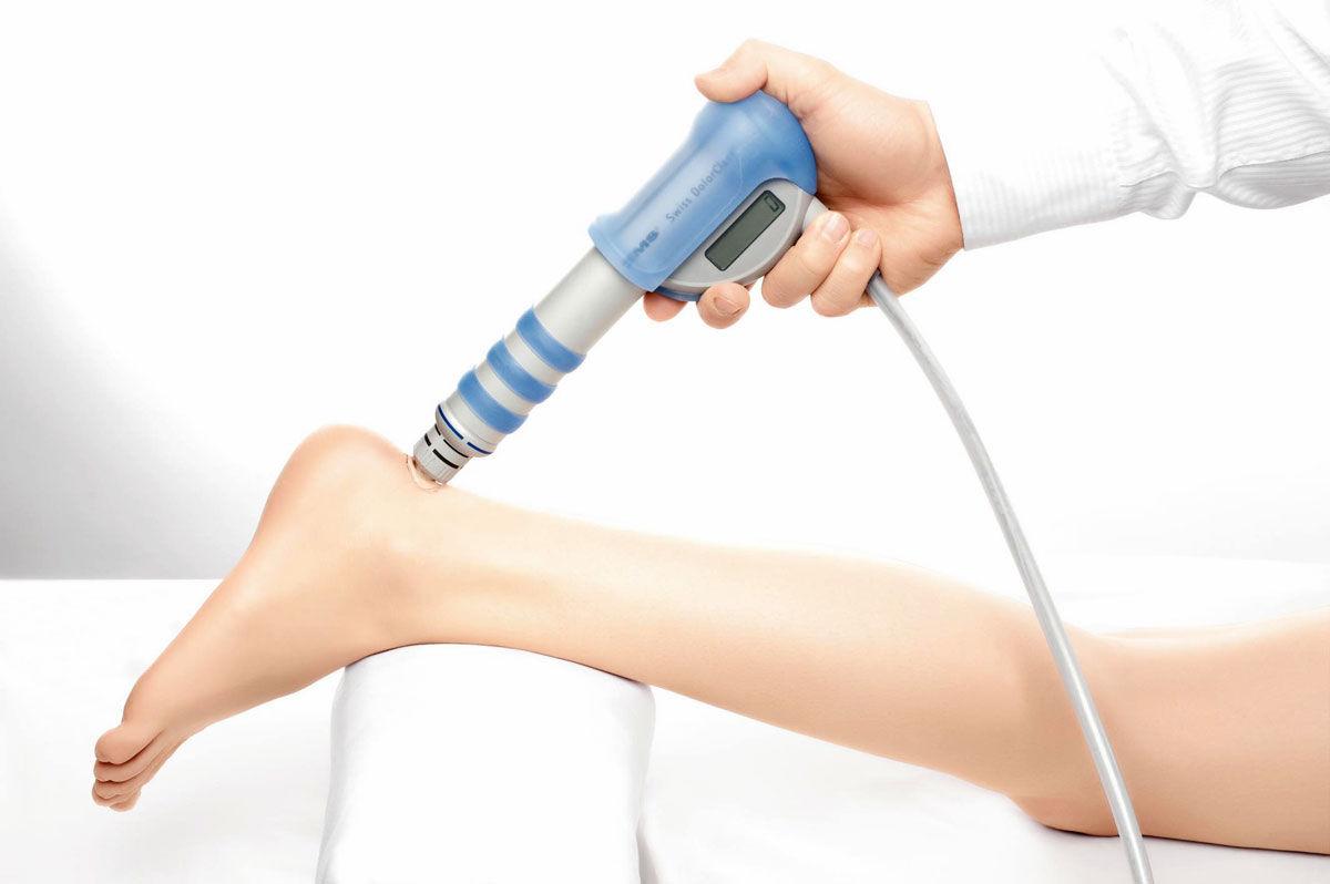Эффективна ли ударно-волновая терапия при пяточной шпоре?