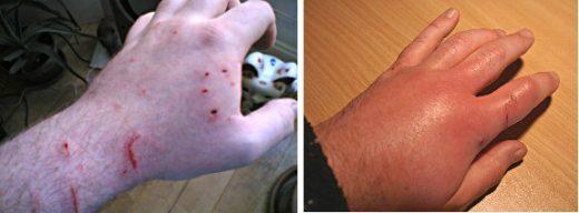 Укус кошки в руку и его последствие