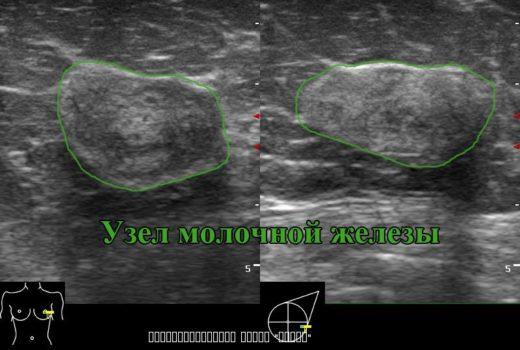 Ультразвуковое изображение молочной железы при кистозной мастопатии