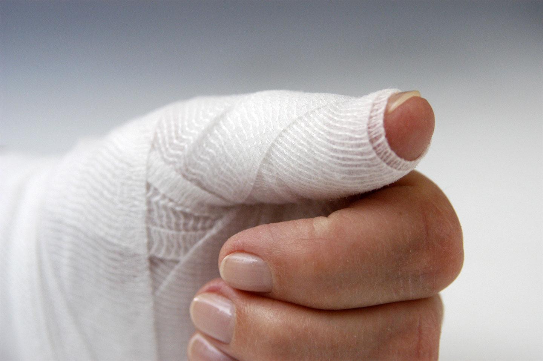 Ушиб пальца: как лечить травму
