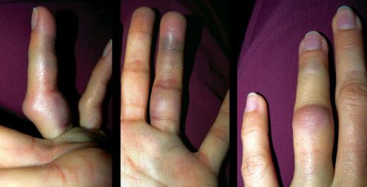Травмированный палец