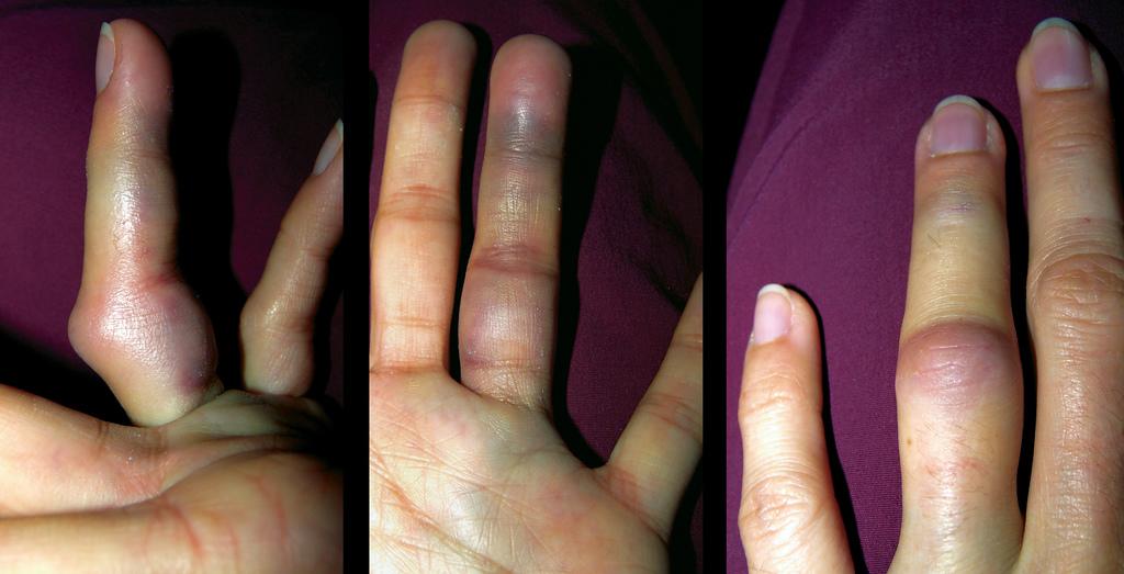Что делать при сильном ушибе пальца руки