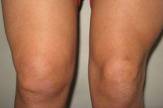 Увеличение пораженного коленного сустава