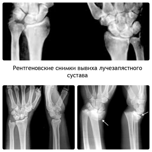 Рентген вывиха лучезапястного сустава