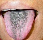 Чёрный налёт на языке