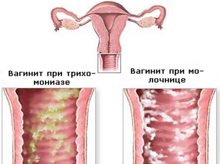 Вагинит и лечение в домашних условиях