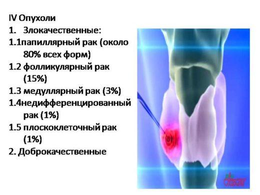 Варианты рака щитовидной железы
