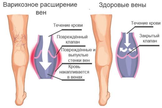 Здоровые вены и поражённые варикозом