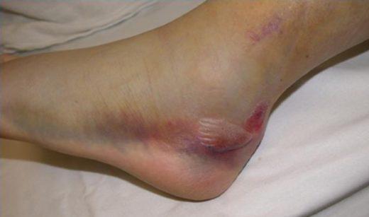 Вид ступни после перелома пятки